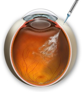 Intraocular Injection, Randall V. Wong, M.D., Retina Specialist, Fairfax, Virginia
