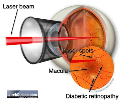 """""""Focal"""" Laser Treatment to Treat Microaneurysms"""