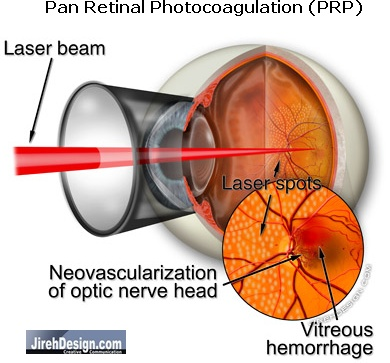 Pan Retinal Photocoagulation (PRP) Used to Treat Proliferative Diabetic Retinopathy