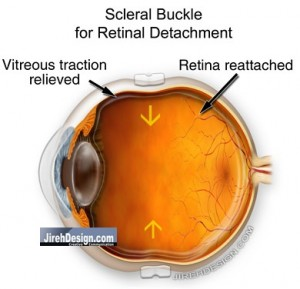 A Scleral Buckle is Placed to Repair a Retinal Detachment