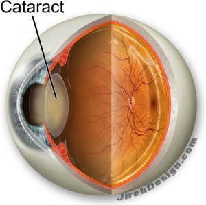 Cataracts Cause Decreased Vision