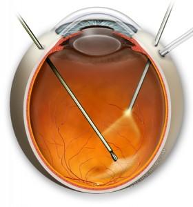 Surgery for Macular Pucker.  Randall V. Wong, M.D., Retina Specialist, Fairfax, Virginia.