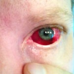 Subconjunctival hemorrhage looks frightening but is really quite benign. It doesn't even hurt. Randall Wong, M.D., Retina Specialist, Fairfax, VA 22030