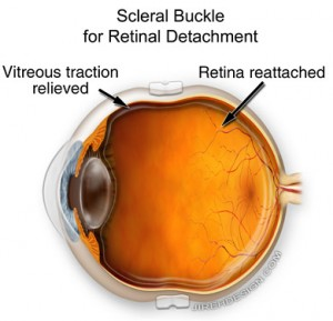 Scleral Buckle for Repair of Retinal Detachment