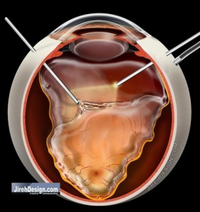A Vitrectomy Can Fix a Retinal Detachment