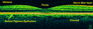 OCT scan of a retina at 800nm with an axial re...