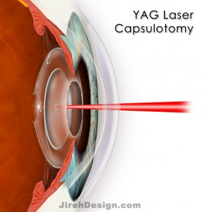 YAG Laser Used for Posterior Capsulotomy