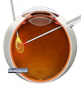 Vitrectomy for Retinal Tear to Remove Vitreous Hemorrhage