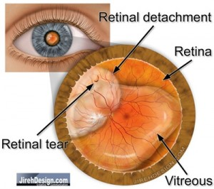 Retinal Detachment Threatening the Macula