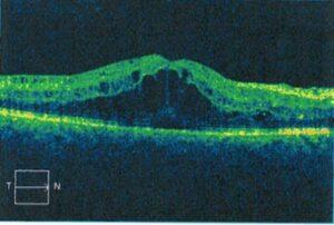 Diabetic Macular Edema Improved with Ozurdex, Randall Wong, M.D., Retina Specialist, Fairfax, Virginia 22031