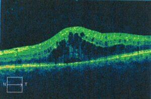 Diabetic Macular Edema Treated with Ozurdex, Randall Wong, M.D., Retina Specialist, Fairfax, Virginia 22031