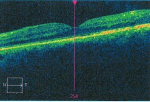 Diabetic Macular Edema After Ozurdex, Randall Wong, M.D., Retina Specialist, Fairfax, Virginia 22030