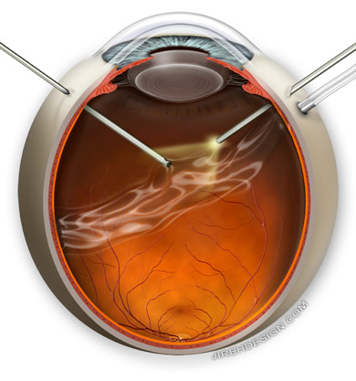 Vitrectomy is performed by retina specialists to repair various retinal diseases. Randall Wong, M.D.