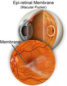 Epiretinal Membrane, Randall Wong, M.D., Retina Specialist, Fairfax, Virginia
