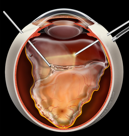 Vitrectomy for Retinal Detachment