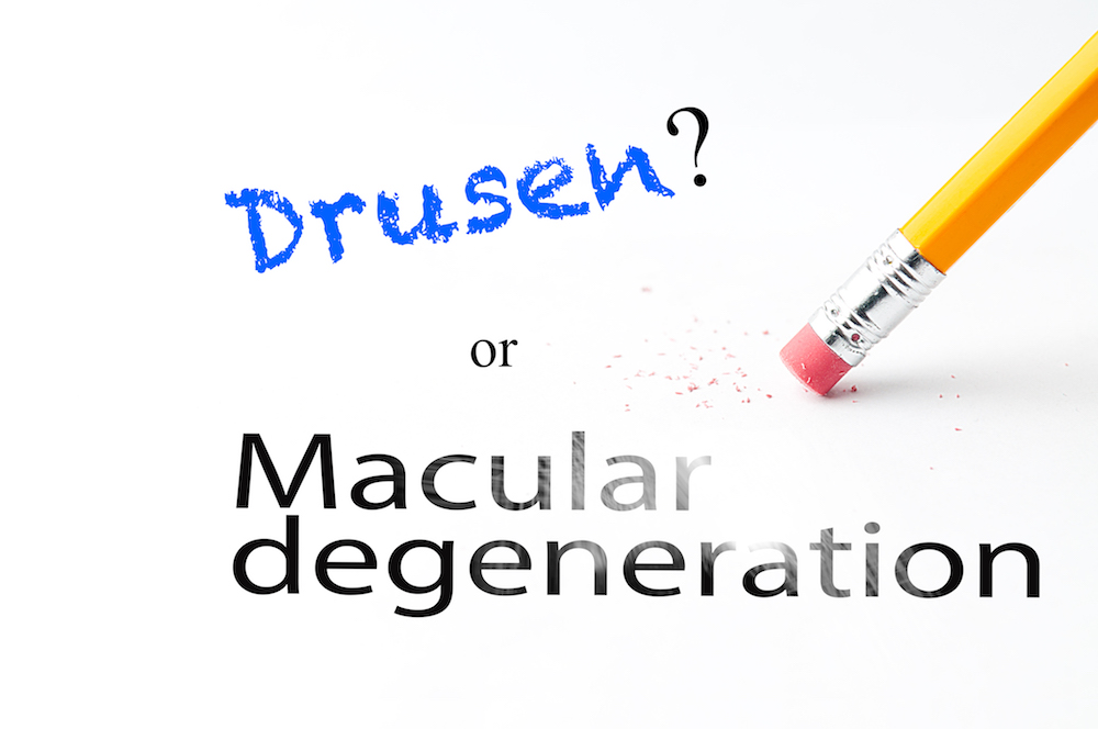 Drusen and Macular Degeneration