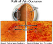 Central Retinal Vein Occlusions | Randall Wong MD Retina Specialist