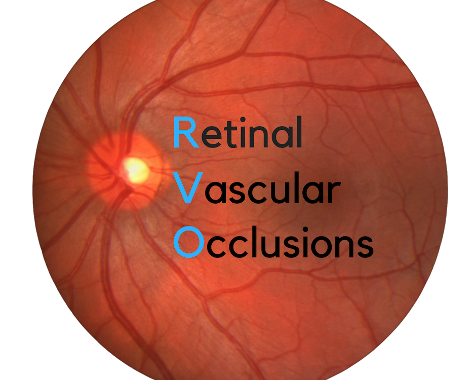 Retinal Vascular Occlusions | BRVO, CRVO, CRAO, BRAO