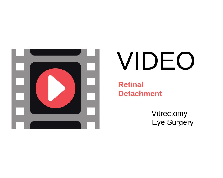 Retina Specialist | Retinal Detachment | Northern Virginia | Washington DC
