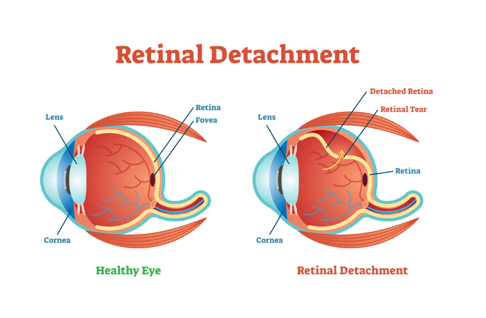 Featured Image Surgery for Retinal Detachment